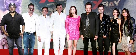 Adarsh Maharashtra | राहुल शर्मा चा पहिला सिनेमा 'एक्सरे' च्या म्यूजिक रिलीज़ साठी अब्बास...