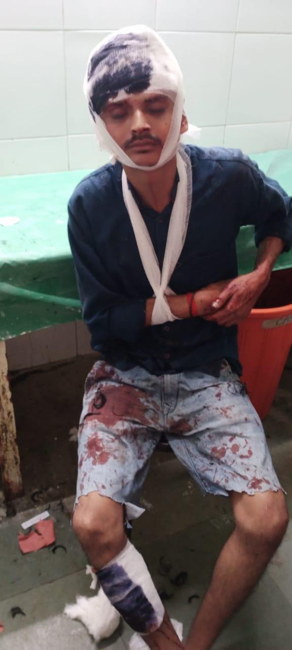 Adarsh Maharashtra | कल्याण-मलंगगड रोडवरील धक्कादायक घटना वॉचमनवर प्राणघातक हल्ला...
